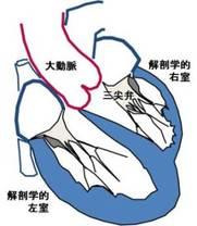 修正大血管転位症では弱い右心室が全身への血液供給を任され無理が生じます
