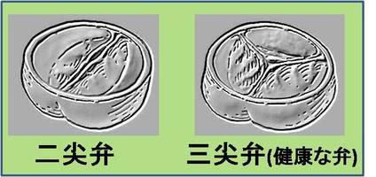 大動脈二尖弁と三尖弁の違いを示します