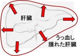 強い三尖弁閉鎖不全症が起こると肝臓がうっ血し徐々に肝硬変になってしまいます