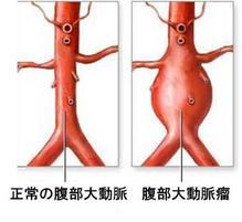 3b) 腹部大動脈瘤(AAA)―破れれば...