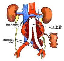 腹部大動脈瘤は手術で99%以上治ります。手術できないときはステントグラフトという選択肢もあります。