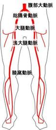 下肢へ血液を送る動脈を示します。これらの動脈のどれかが狭くなったり詰まったりすると下肢が痛んだり、悪くすると腐ったりしてしまいます