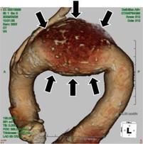 遠位弓部大動脈瘤の患者さんのCT写真(3次元再生)です