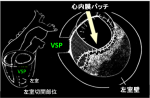 図 VSP手術