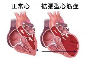 正常心と拡張型心筋症