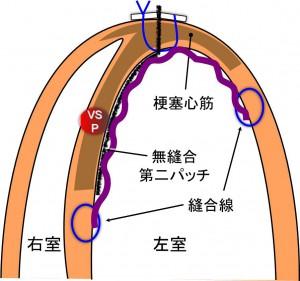 VSP current surgery