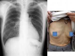 術後胸部X線と創部写真