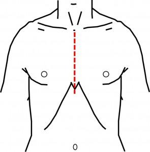 medianSternotomy