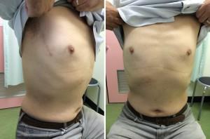 前腋窩線MICS